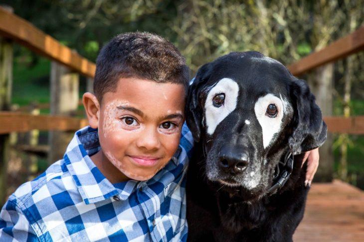 niño con perro negro y manchas blancas
