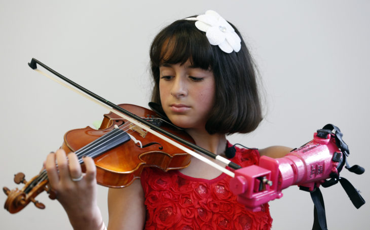 Prótesis brazo niña violín