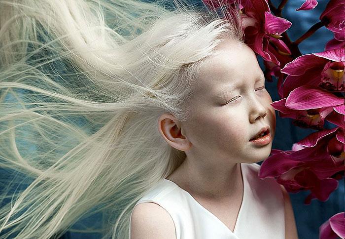 Niña albina posando para un fotógrafo