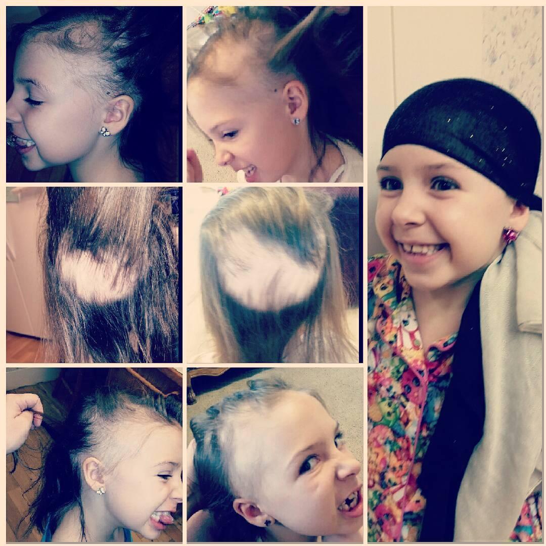 En 20 días se había ido todo su cabello, pero eso no le impidió celebrar el  Día del Cabello Loco en su escuela.