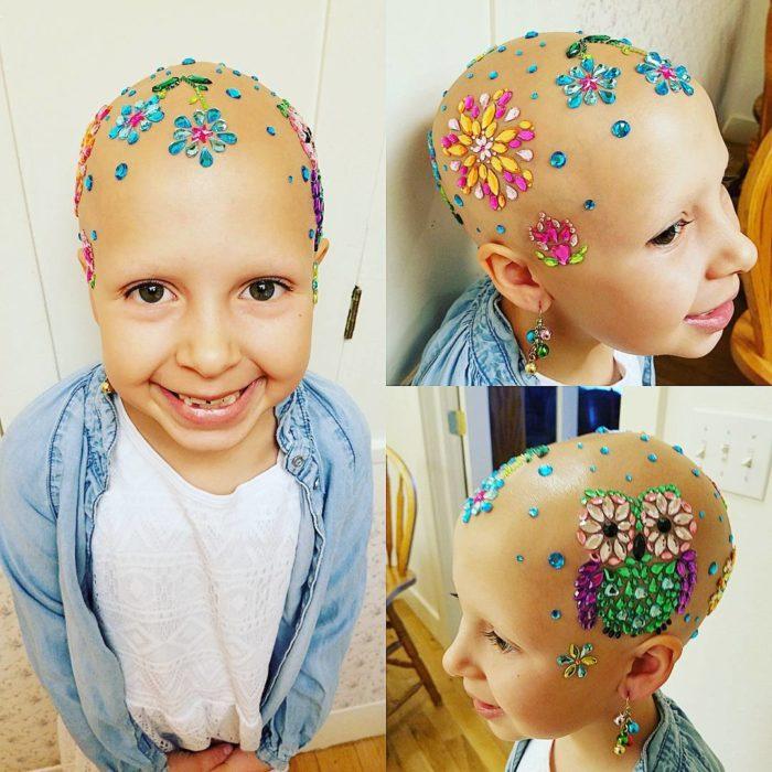 niña con alopecia