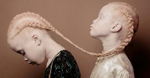 Conoce a las gemelas albinas que están impactando al mundo