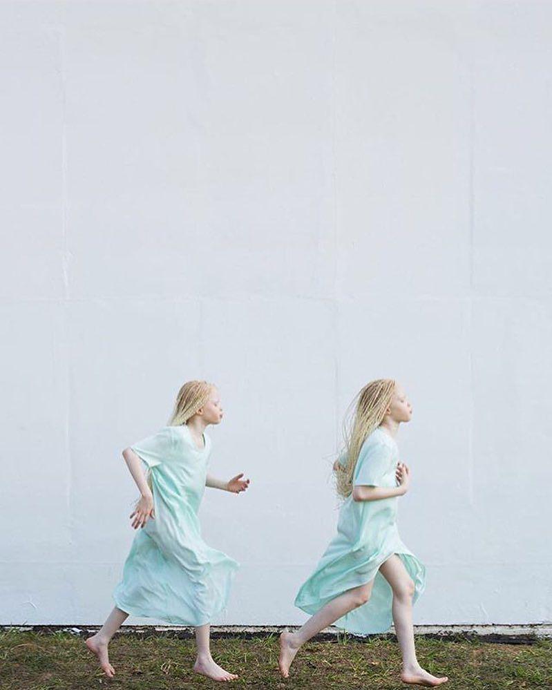 gemelas albinas brasil 2