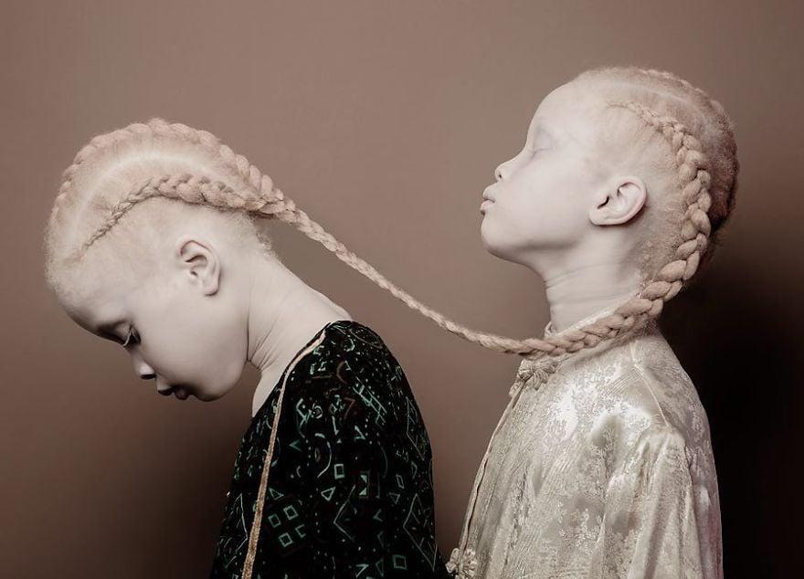 gemelas albinas brasil 3