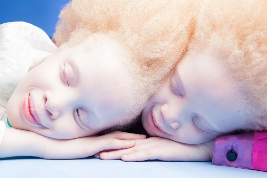 gemelas albinas brasil 4