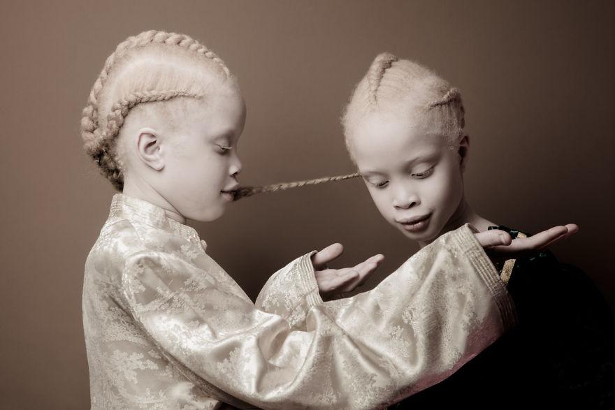 gemelas albinas brasil 5