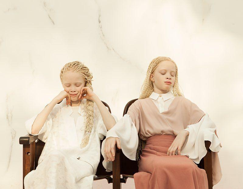 gemelas albinas brasil