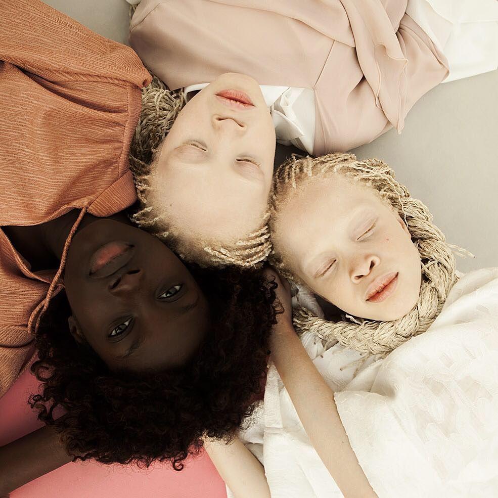 gemelas albinas brasil 1