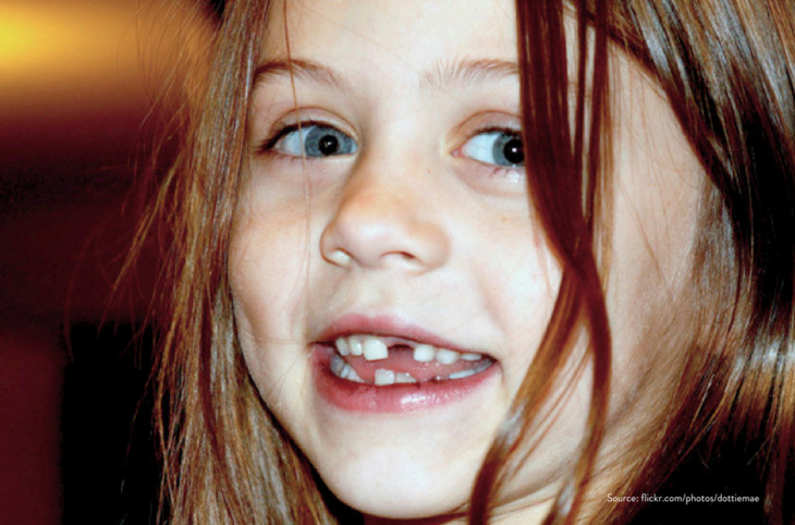 niña sin diente