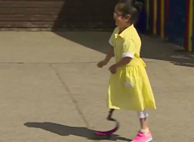 niña con protesis vuelve a la escuela