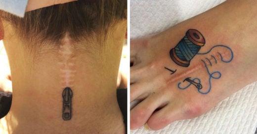 15 Tatuajes que cuentan sorprendentes historias de las cicatrices que cubren