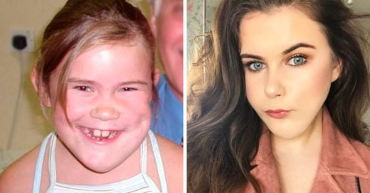 Esta chica tiene una enfermedad facial; nada le ha impedido ser blogger de belleza