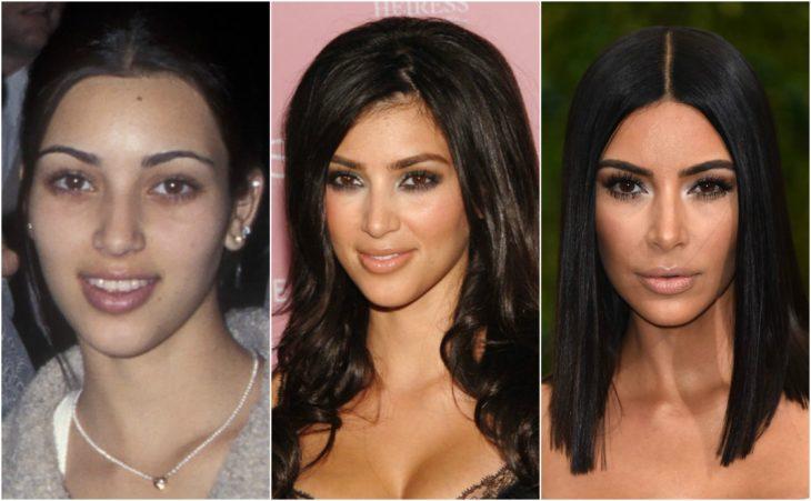 cirugía transformación kim kardashian