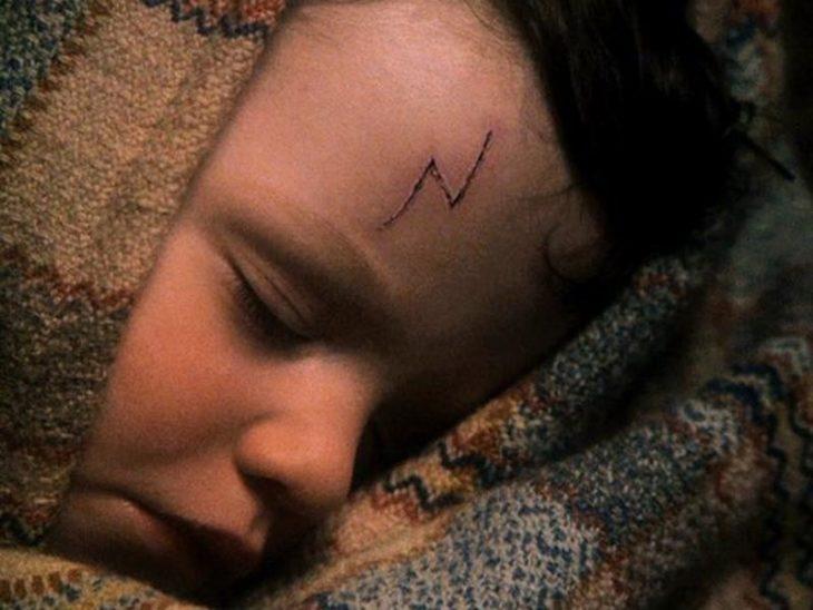 niño con cicatriz dormido