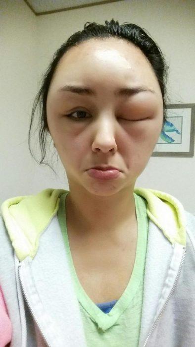 Chica que sufrió de una reacción alérgica