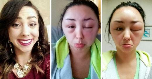 Mujer sufre reacción alérgica al tinte, el resultado es gracioso