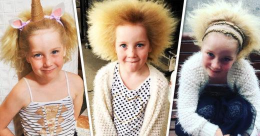 Esta niña tiene el síndrome del cabello impeinable; y no, no es una broma