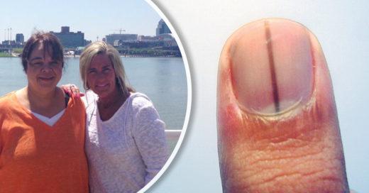 Esta mujer supo que tenía cáncer debido a una extraña mancha en su uñ