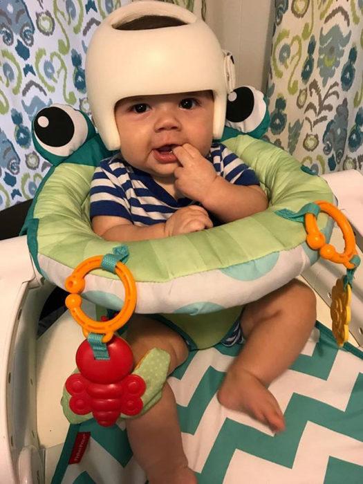 bebé con casco