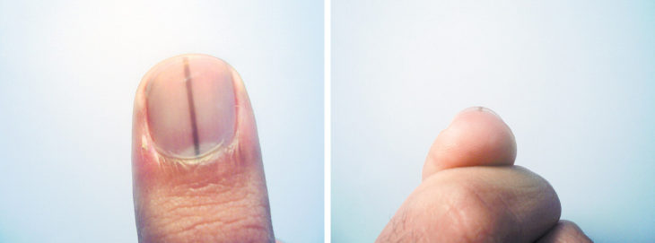 tipo de cáncer lineal en las uñas