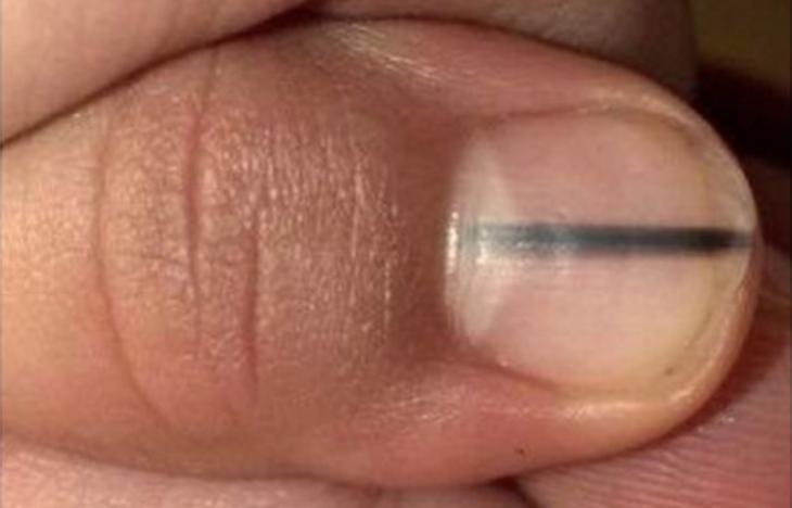 Mujer con una mancha en sus uñas de color negro