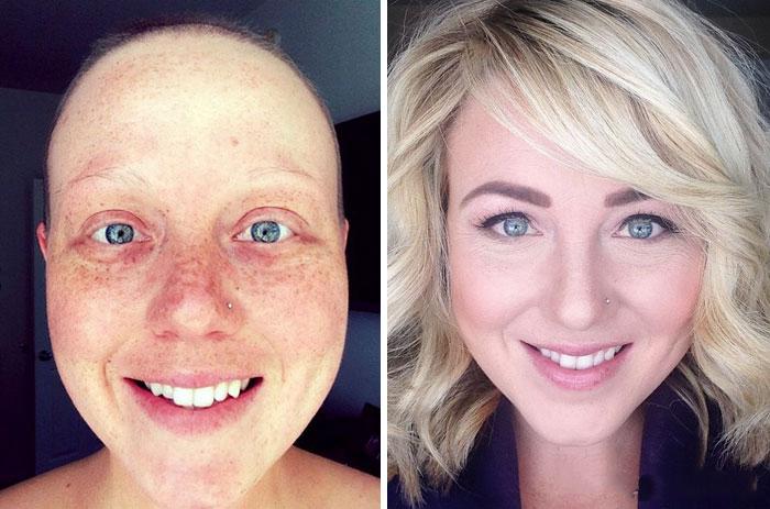 Antes y después de personas que vencieron el cáncer