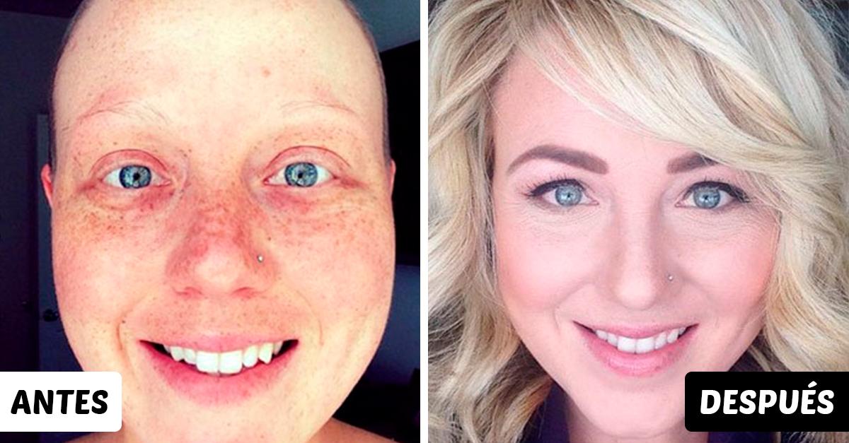 15 Fotografías del antes y después de personas que vencieron al cáncer