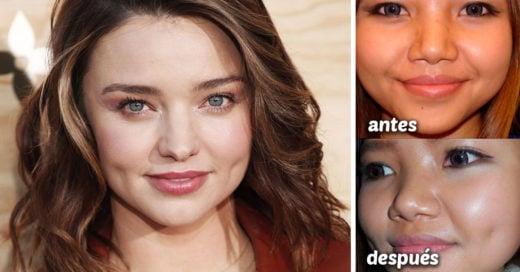 """""""dimpleplasty"""", la cirugía estética de moda entre los millennials"""