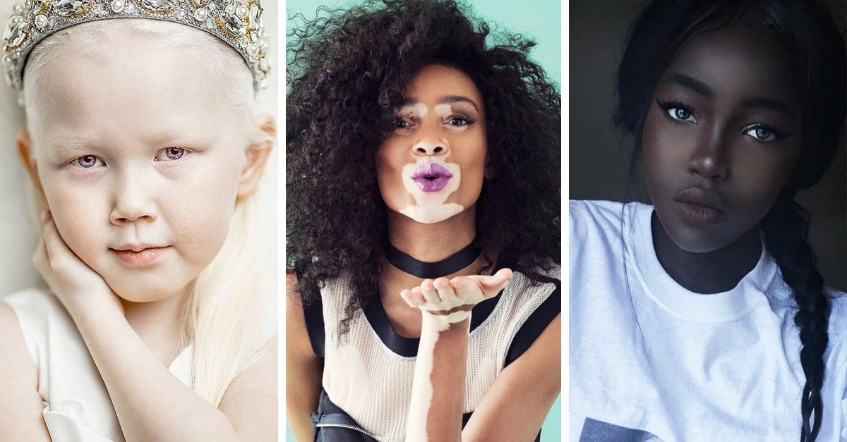 15 Personas con un tono de piel increíble; parecen dibujados por los Dioses
