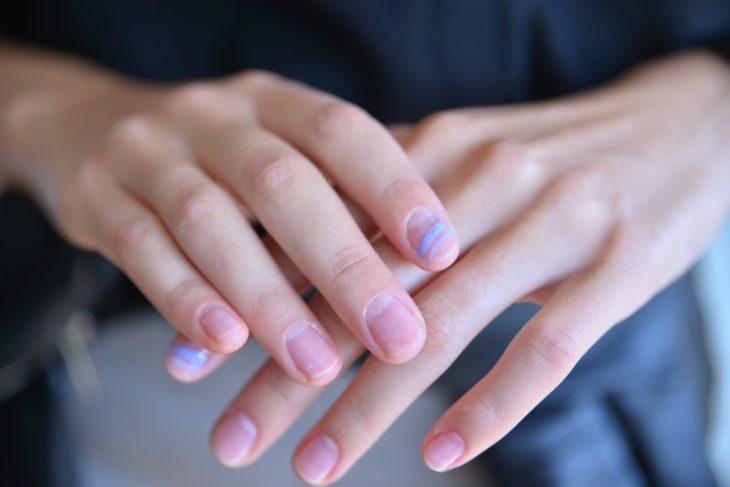 linea lila uñas