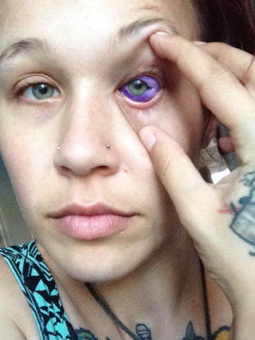 mujer con ojos azules y uno morado