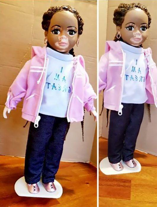 Artista crea muñecas con vitiligo