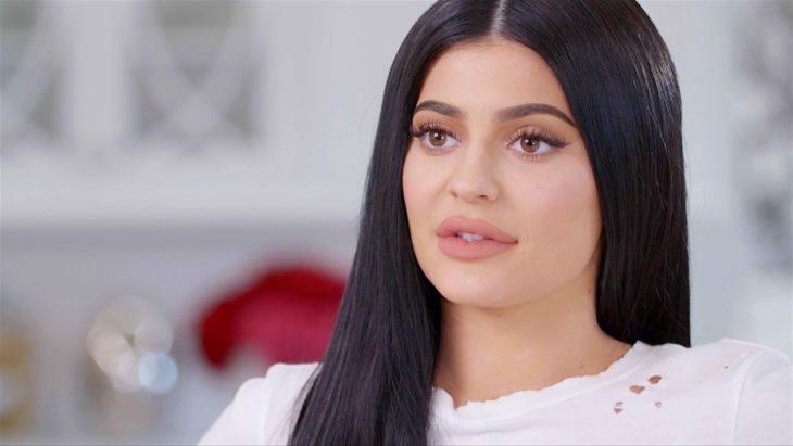 Kylie reveló que se operó los labios en una sesión de terapia
