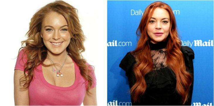 Lindsay Lohan cirugías