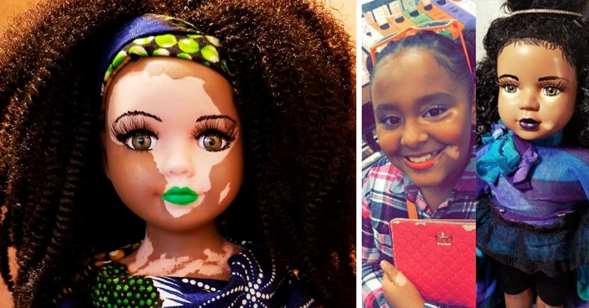 Esta artista crea muñecas con Vitiligo para niñas con esta condición