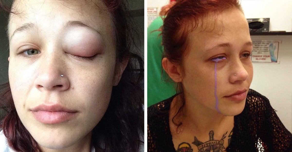 tatuaje en los ojos deja parcialmente ciega a una modelo