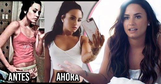 Demi Lovato compartió una imagen de su cuerpo antes y después de la anorexia; su recuperación ha sido increíble