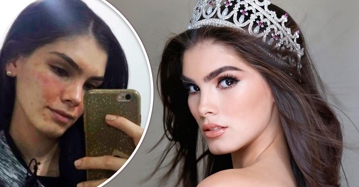 Miss México pública una imagen de sus imperfecciones y manda un mensaje para todas las chicas