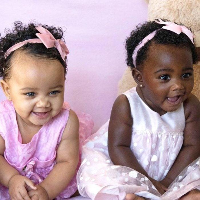 Gemelas que nacieron con un increíble color de piel diferente