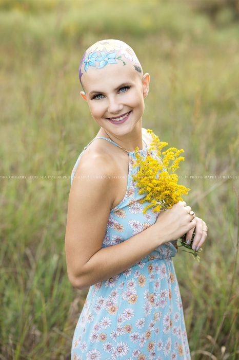 Chica sufre alopecia y su madre pinta flores para una sesión de fotos