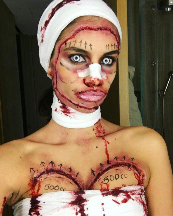 Sara Sampaio paciente de cirugia