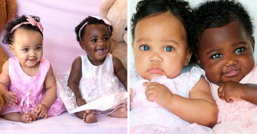 Estas hermosas gemelas nacieron con un tono de piel muy distinto