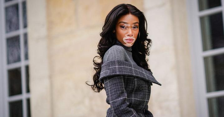 mujer con cabello largo y manchas vitiligo