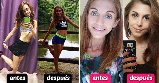 10 Personas que lograron superar la anorexia