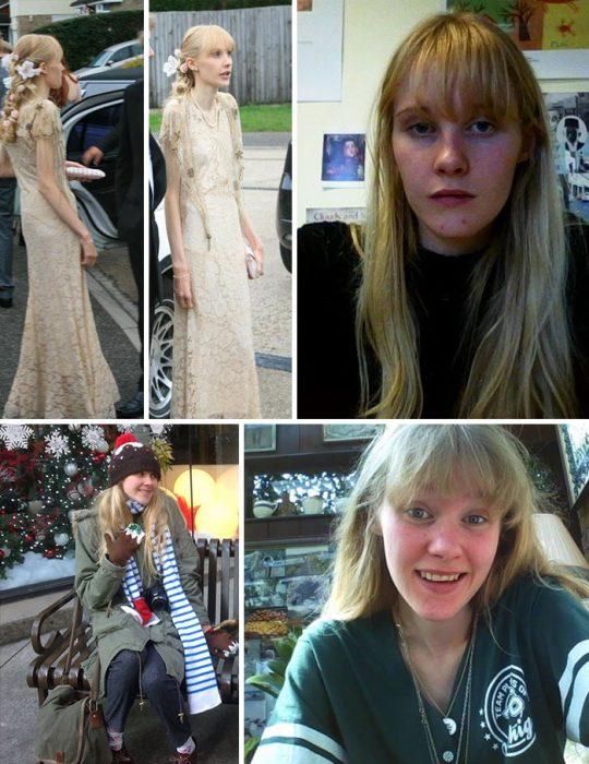 Personas antes y después de superar la anorexia