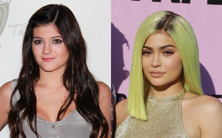 Kylie Jenner antes y despues de cirugías