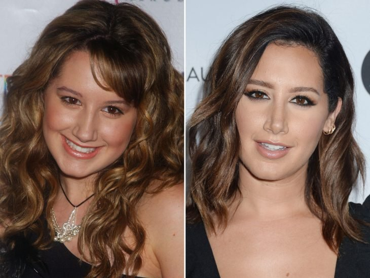 ashley tisdale antes y despues cirugía