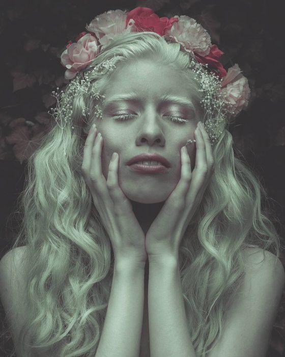 ruby vizcarra modelo albina mexicana