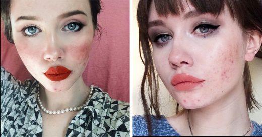 Esta chica envió un importante mensaje sobre el acné