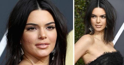 Kendall Jenner envía un mensaje a todas las chicas que sufren de acné como ella